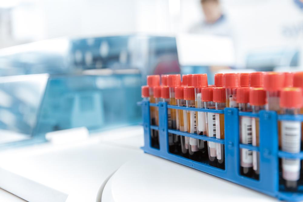 A importância da acreditação dos laboratórios clínicos